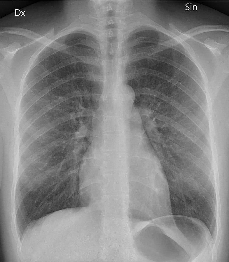 Et røntgenbillede af en brystkasse